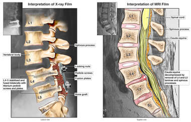 Post-operative Condition of Lumbar Spinal Fusion