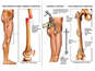 Post-accident Fractures of the Right Femur with Surgical Fixation