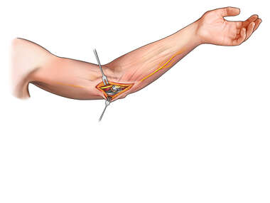Reattachment of Flexor Mass in the Elbow