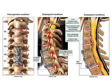 Condition of Cervical Spine