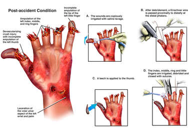 Hand Injury with Surgical Amputation