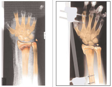 Colorized X-ray Illustrating Radius Fracture
