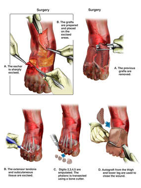 Surgical Repairs of the Foot