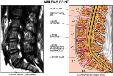 MRI Film with L2-3, L3-4, L4-5 and L5-S1 Lumbar Disc Injuries