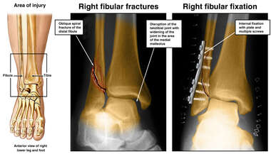 Right Fibular Fracture and Fixation