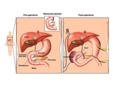 Surgical Resection of Pancreatic Mass with Post-operative Abscess
