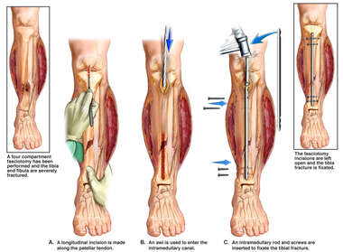 Left Tibial Fixation Procedure
