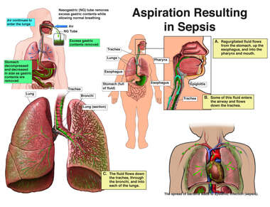 Aspiration Resulting is Sepsis