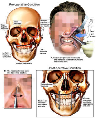 Surgical Fixation of Facial Fractures