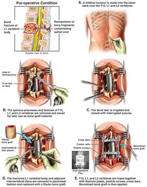 Lumbar Burst Fracture and Surgical Fusion