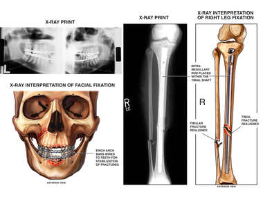 Skeletal and X-Ray Film Images of Surgical Fixation of Injuries to the Face, Lower Leg and Ankle