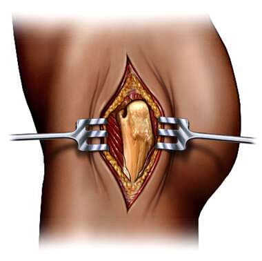 Femoral Head Exposure