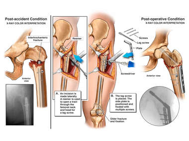 Left Hip Intertrochanteric Femur Fracture and Surgical Fixation