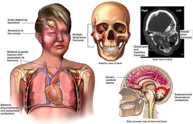 Female Torso with Scalp Lacerations, Collapsed Lungs, Skull Fractures and Brain Injury