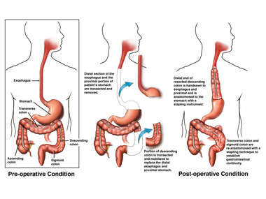 Partial Esophagectomy with Proximal Gastrectomy and Colon Interposition