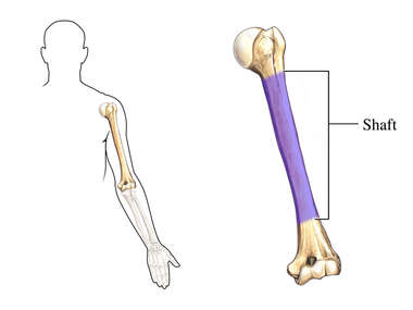 Shaft of Humerus