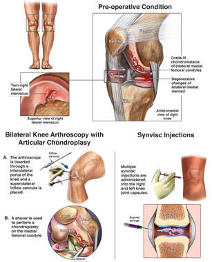 Bilateral Knee Injuries and Surgery
