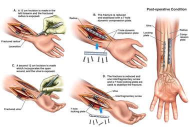 Surgical Fixation of Fractures of the Left Wrist