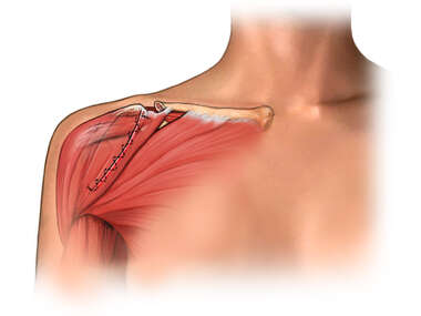 Open Shoulder Surgery - Post-Op Condition