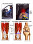 Traumatic Knee Injury with Arthritic Changes and Muscular Atrophy