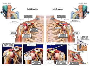 Right Shoulder Arthroscopy Torn Biceps and AC Joint Resection