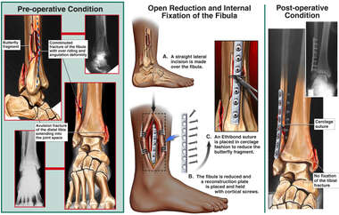 Fibular and Tibial Fracture Fixation