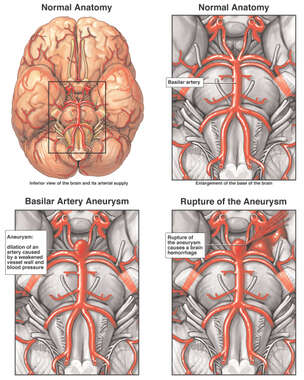 Basilar Artery Aneurysm with Subsequent Rupture