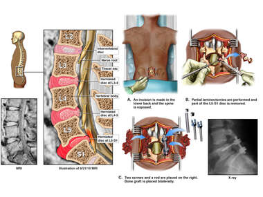 Lumbar Spine Injuries with Posterior L5-S1 Discectomy and Fusion