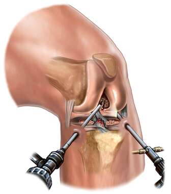 Knee Surgery -  Injuries with Arthroscopic Repair
