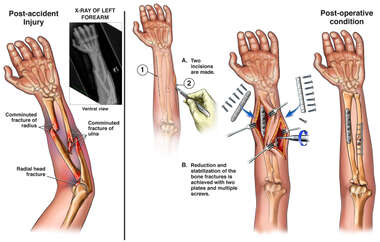 Left Arm Fractures with Surgical Fixation