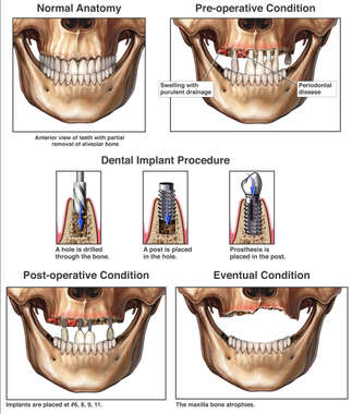 Infection and Bone Loss Following Dental Implant Placement