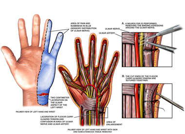 Left Hand Post-accident Wrist Laceration with Tendon Transection and Nerve Injury