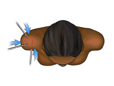 Arthroscopy Incisions in the Shoulder-superior view