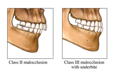 Examples of Malocclusion