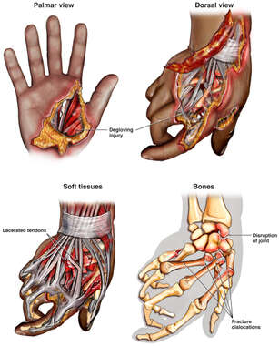 Right Hand Crush Injuries