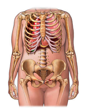 Female Torso with Post-accident Injuries to the Thorax and Pelvis