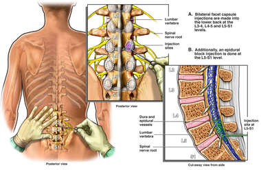 Lumbar Facet and Epidural Block Injections