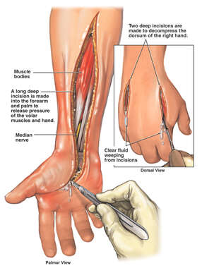 Fasciotomy Procedures of the Forearm and Hand
