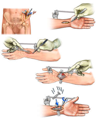 Additional Complications and Repair of the Left Wrist