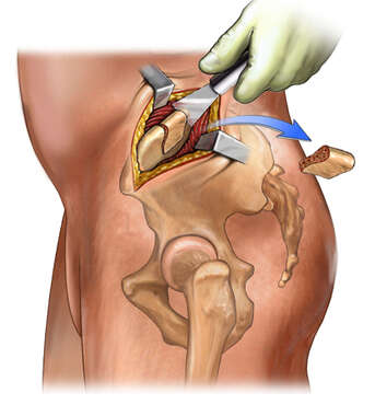 Graft Harvest from Iliac Crest ( Hip)