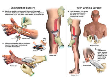Skin Grafting Surgeries