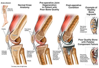Bone Degeneration in the Knee