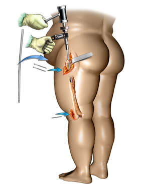 Femur Fracture Fixation in an Obese Person