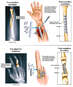 Fractures of Left Forearm and Right Middle Finger with Surgical Fixation