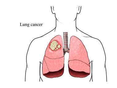 Cancer of the Lung
