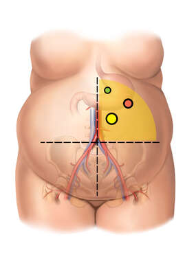 Abdominal Quadrants and Trocar Insertion Points