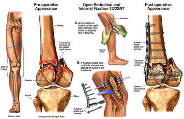 Distal Femoral Fracture with Surgical Fixation