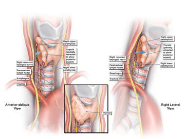 Right Recurrent Laryngeal Nerve and Surrounding Anatomy
