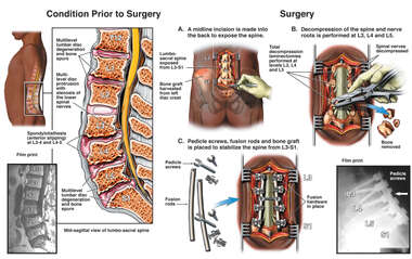 Lumbar Spine Pathologies with Multilevel Surgical Decompression and Fusion Procedure