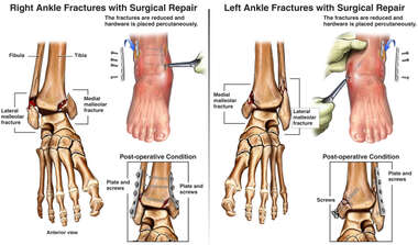 Bilateral Ankle Fractures and Surgical Fixation